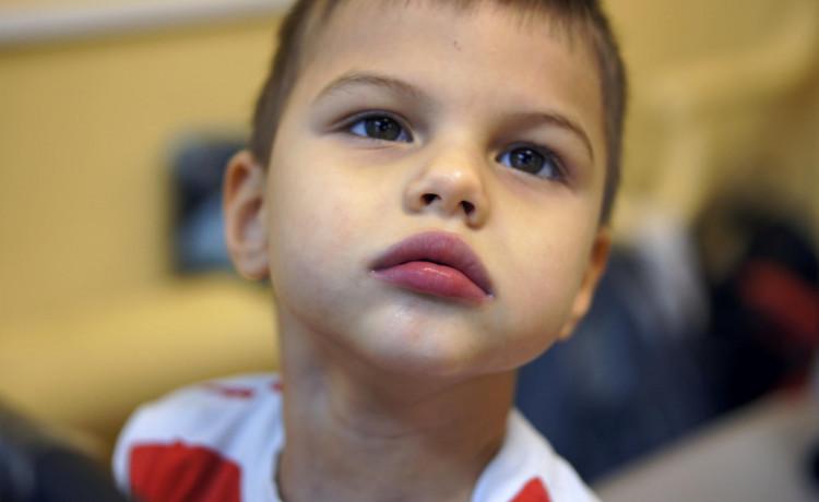 Знакомьтесь, Вова Слободчиков. Мальчик, который в годик пришёл с прогулки, уснул, а проснулся парализованным и слепым